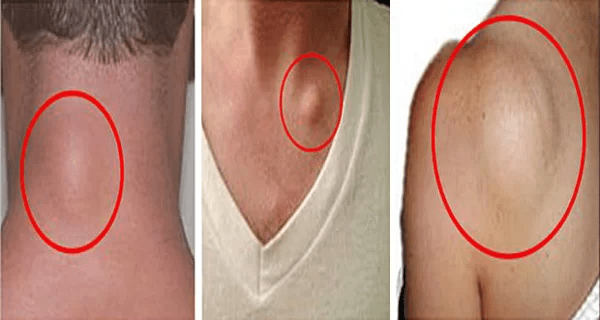 how-to-get-rid-of-skin-lumps-lipomas-naturally (1)