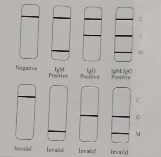 Posibles resultados del test de anticuerpos del coronavirus SARS CoV-2