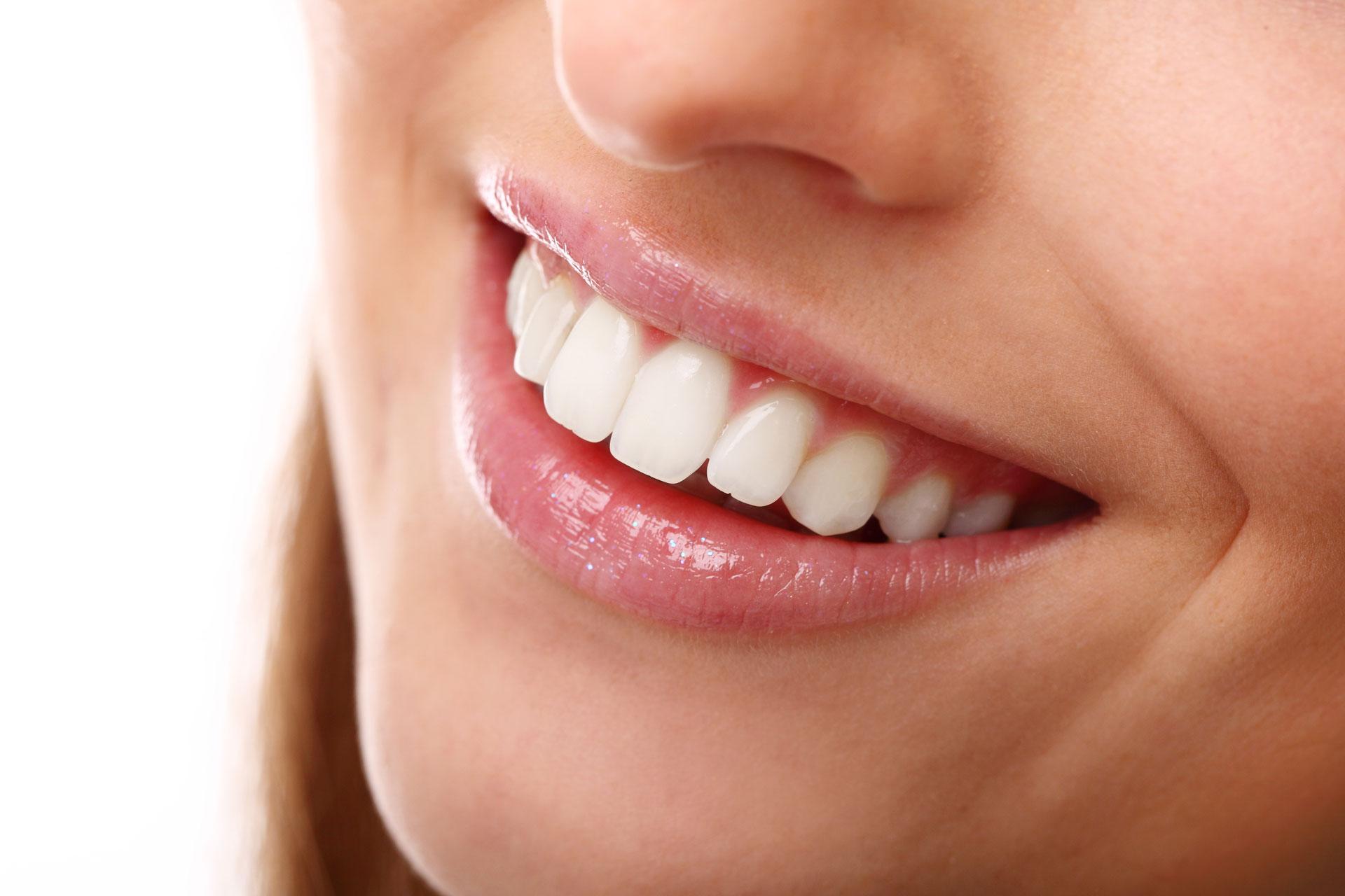 Sbiancamento-dei-denti-professionale
