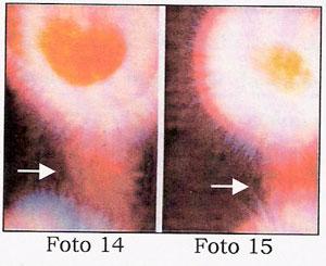 Foto 14 e 15 pg 20