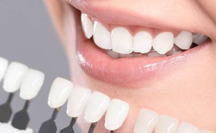 alternative to dental implants