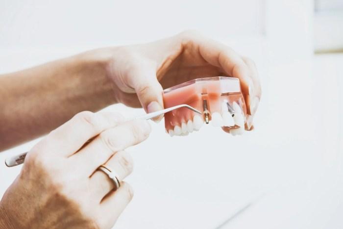 Cheaper Alternative To Dental Implants