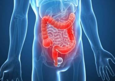 Čišćenje crijeva