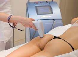 cellulite removal with laser