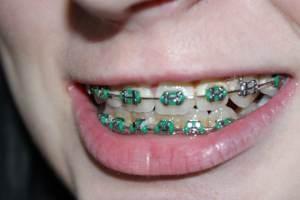 Comment savoir si l'on a besoin d'un appareil dentaire