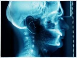 Cervicales: tratamiento, prevención y ejercicios para su Salud
