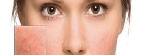 Cuperosis o Enrojecimiento facial: causas y tratamiento natural