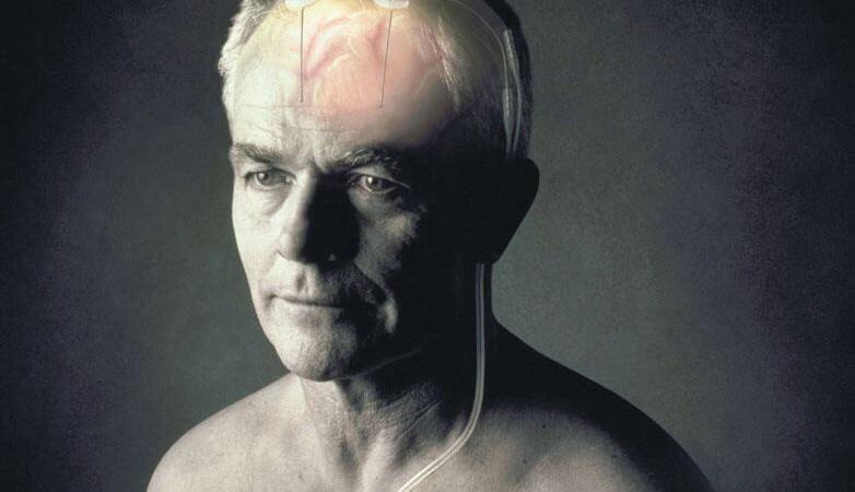 巴金森氏病患者有福了! 健保放寬「深層腦部刺激器」醫材給付規定