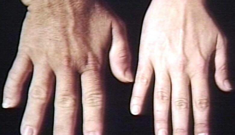 肢端肥大症早期發現不易 警覺外觀變化是重點
