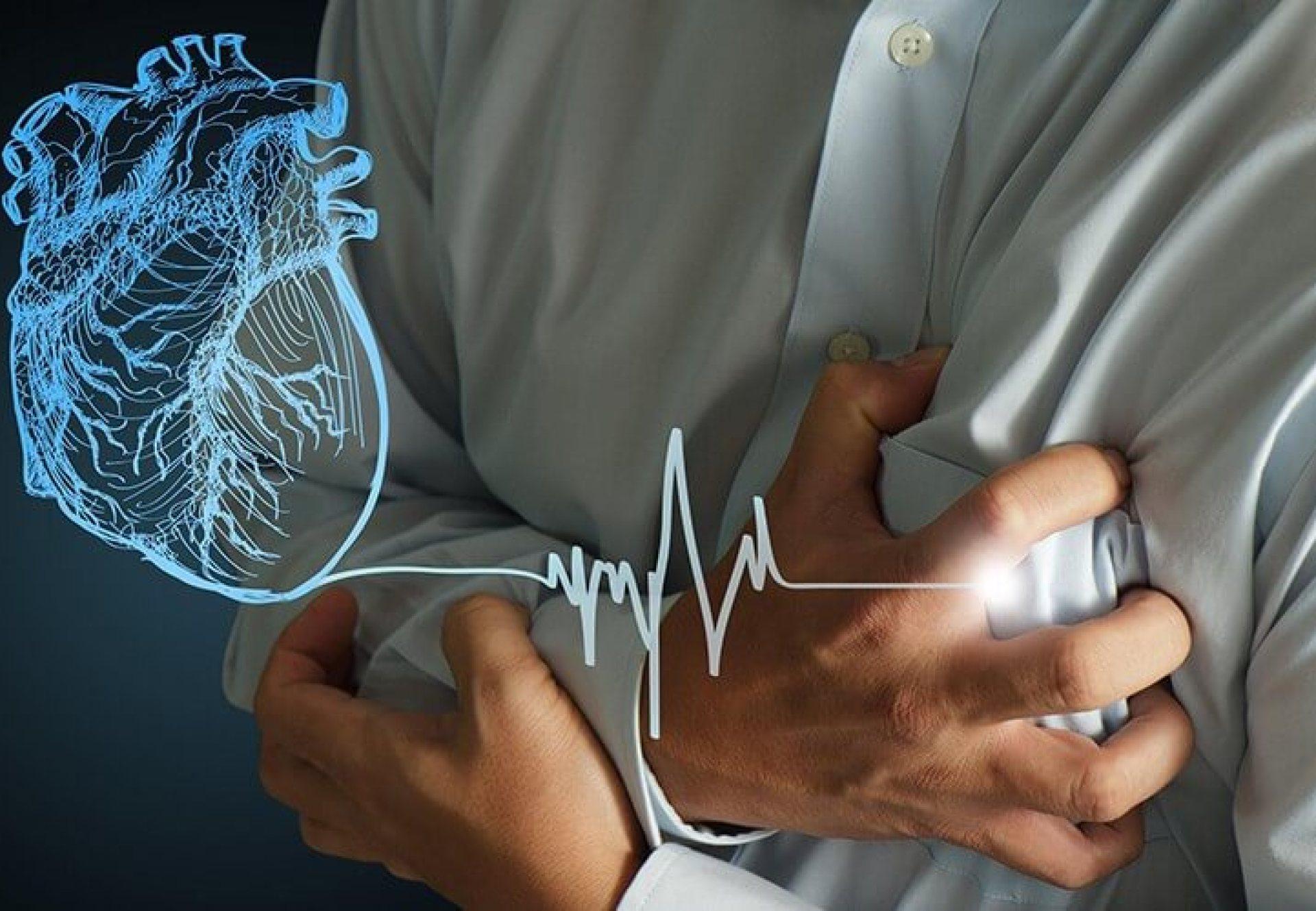 心肌梗塞2