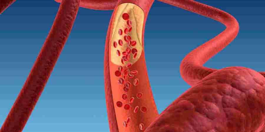 心臟冠狀動脈鈣化 嚴重可能導致「心肌梗塞」
