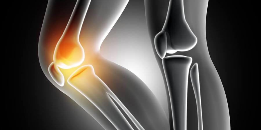 刻「骨」銘心的愛- 50歲以上12.3%的人有骨質疏鬆症