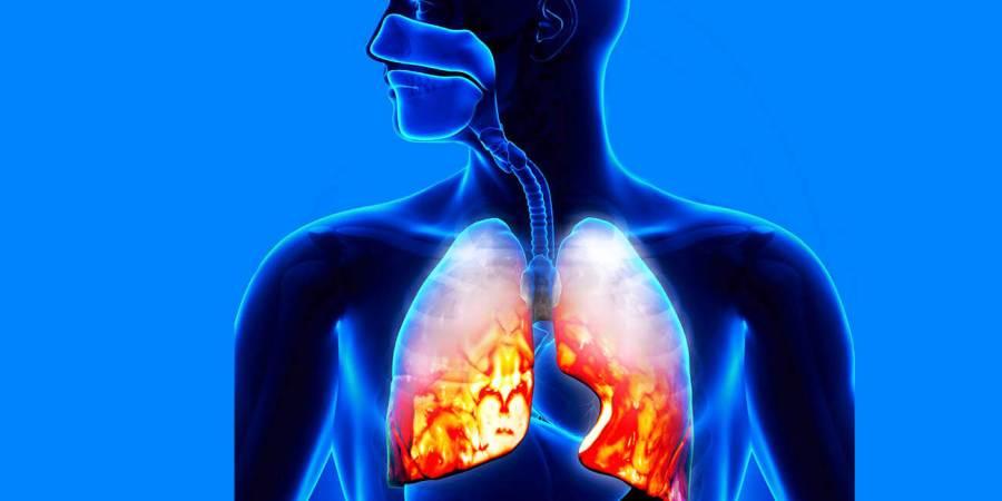 肺炎與年齡、飲食及營養有很大關係