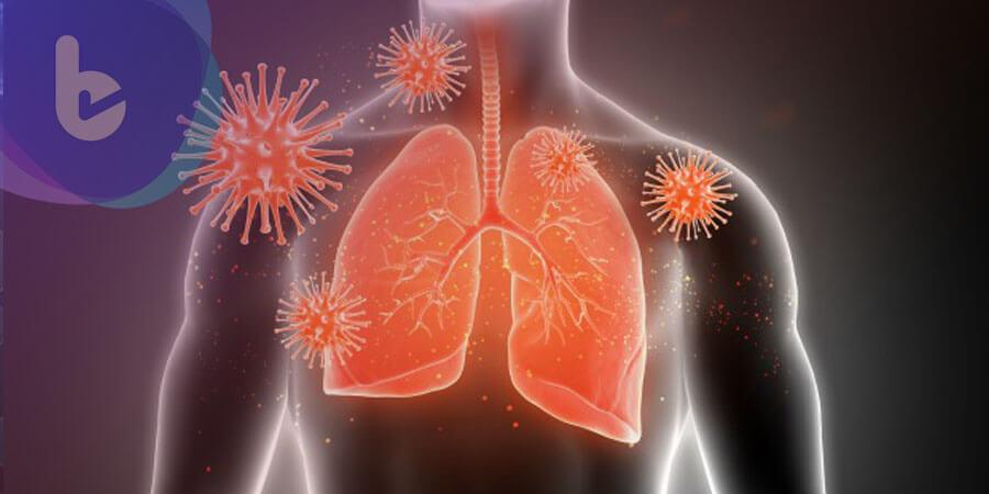 骨盆腔疼痛竟是晚期肺癌轉移 不可逆標靶增加患者治療信心