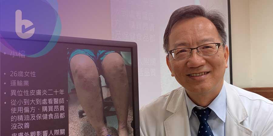 異位性皮膚炎新針劑 12月起納健保給付