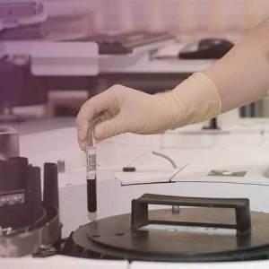 宣捷製藥:臍帶間質幹細胞藥物 治療2019新冠肺炎新希望