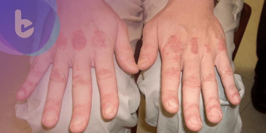 身體出現不尋常紅疹合併四肢無力 當心皮肌炎上身