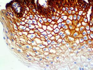 IHC of EGFR Phospho on an FFPE Cervix Tissue
