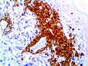 IHC of S-100 on an FFPE Malignant Melanoma Tissue