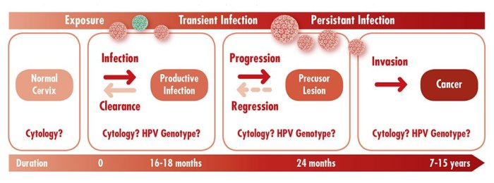 VA-cervical-cancer-progression