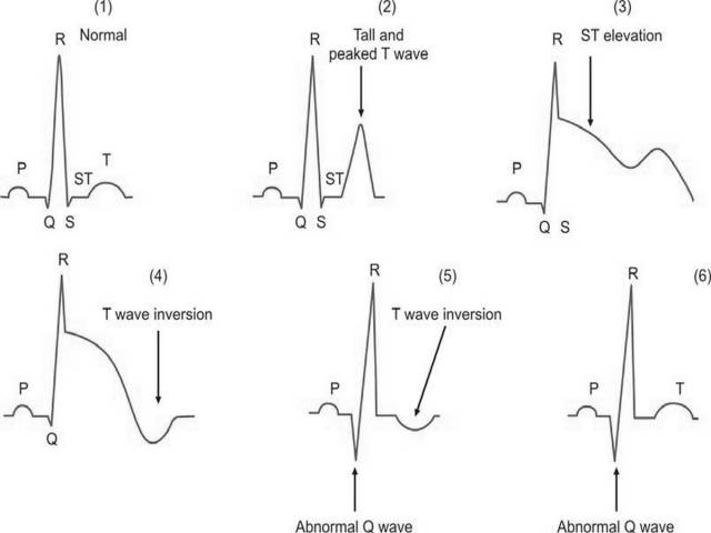 Role Of Electrocardiogram Ecg In Diagnosis Prognosis