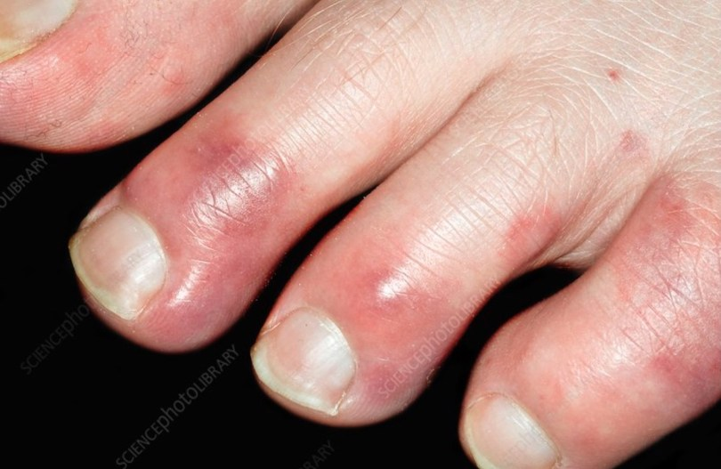 Chilblains in feet means they are sore to touch
