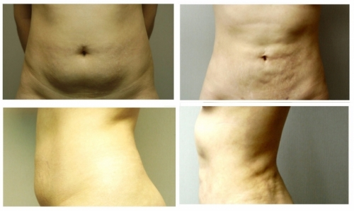 garcinia cambogia before and after pics.jpg