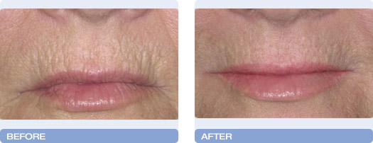 before_after_CoolTouch_CT3Plus_Laser_wrinkle_reduction_2
