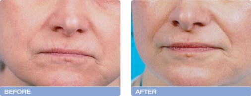 before_after_CoolTouch_CT3Plus_Laser_wrinkle_reduction_3