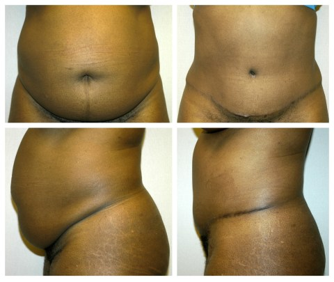 Tummy Tuck Before and after in Metro Detroit Area