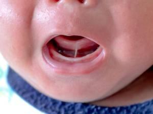 tongue-tie baby