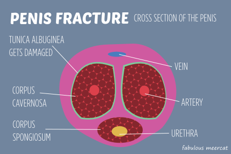 penis fracture is when the tunica albuginea gets damaged during sex - Bish