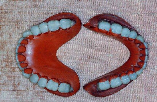"""Résultat de recherche d'images pour """"dentier ancien en vulcanite"""""""