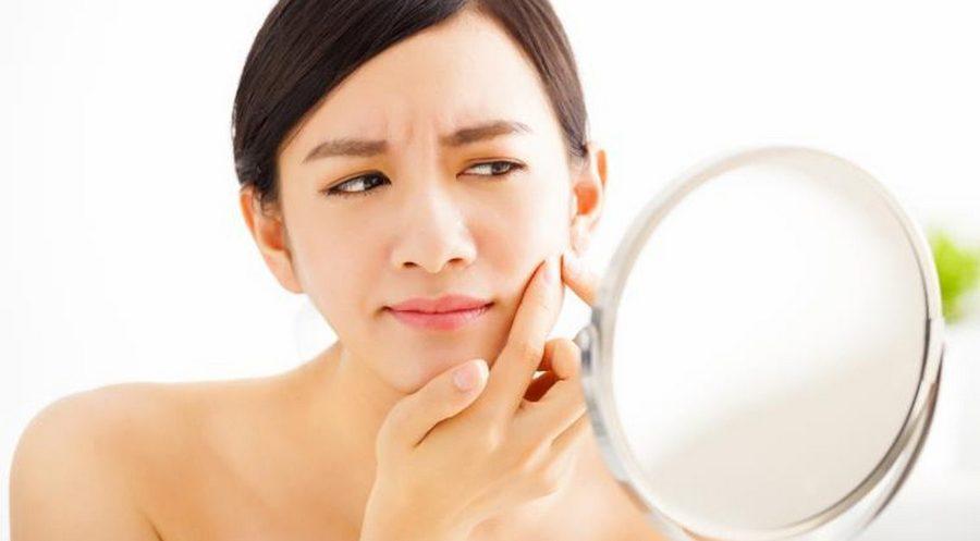 4 Produk Skin Care JAFRA untuk Menghilangkan Jerawat