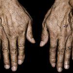 Bagaimana Beta Hydroxy Acid Melawan Penuaan Kulit & Keriput?