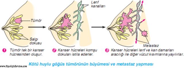 meme bezlerinde metastas
