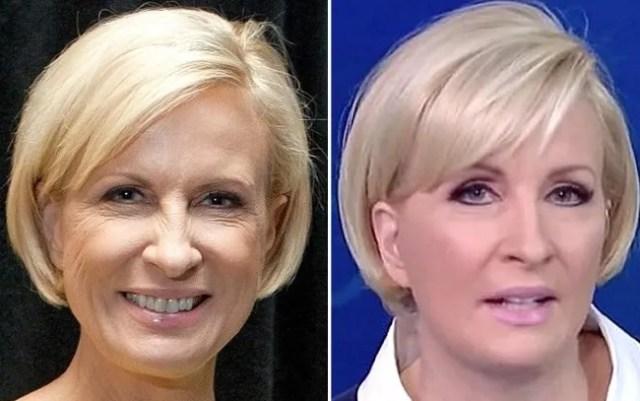 Mika Brzezinski facelift plastic surgery before after joe scarborough