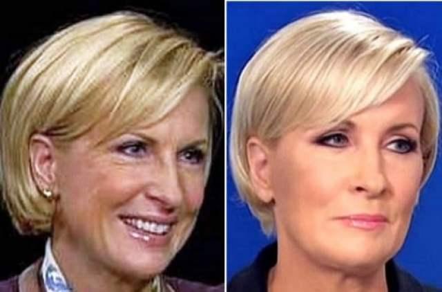 Mika Brzezinski plastic surgery facelift before after photos