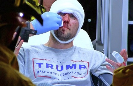 trump supporter attacked beaten