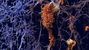 alzheimer-vucudumuzu-korurken-olusuyor-olabilir-bizsiziz