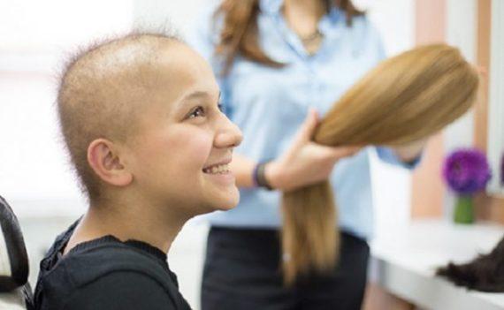 kemoterapi-sac-dokulmesi-bizsiziz