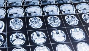 brain-scan bizsiziz.com