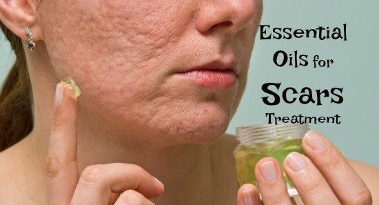 essential oils for scars treatment
