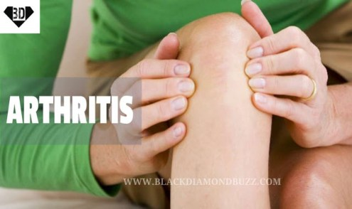 What you should know about Arthritis