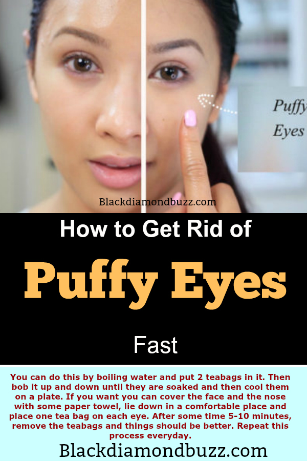 How To Get Rid Of Puffiness Under Your Eyes Naturally