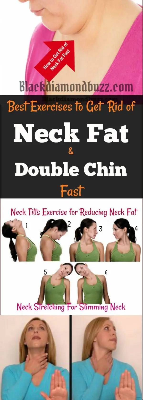 How to Get Rid of Neck Fat Fast – Exercises and Home Remedies Tips
