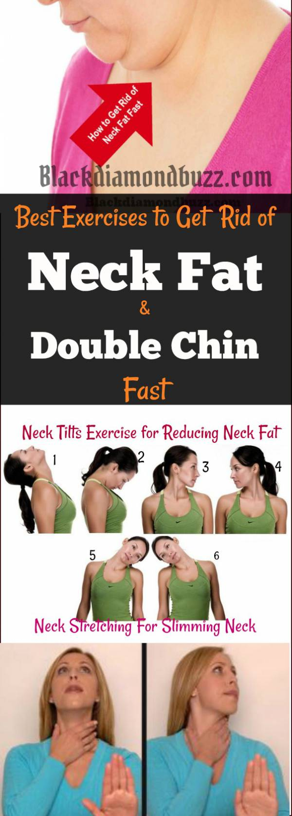 How To Get Rid Of Neck Fat Fast Exercises And Home Remedies Tips
