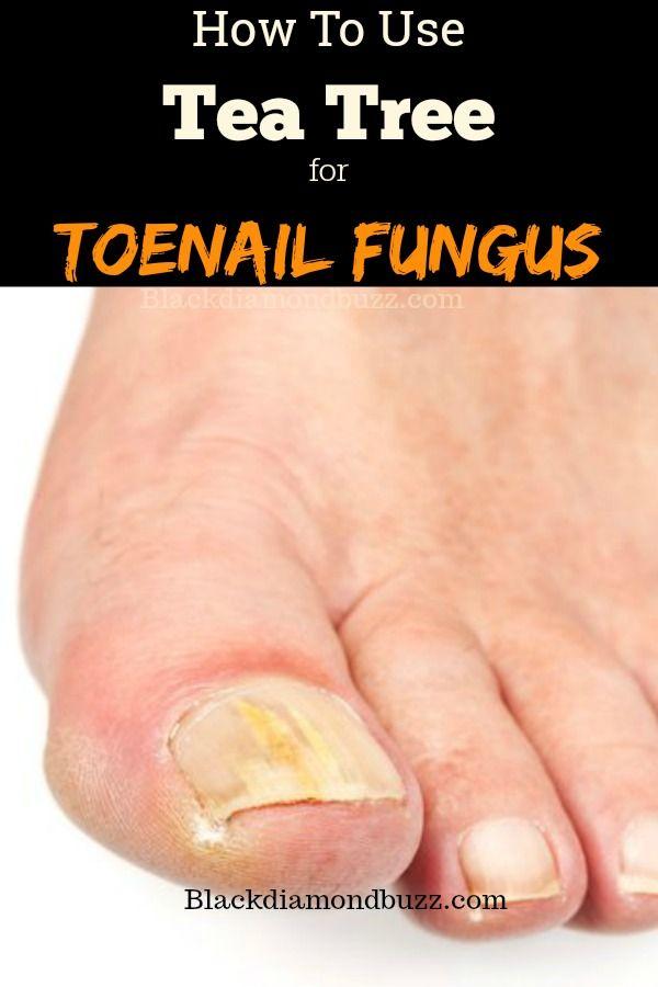 How to use tea tree for toenail fungus