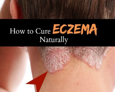 How to Cure Eczema Permanently - 10 Home Remedies for Eczema