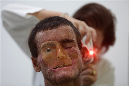 APTOPIX Brazil Rare Disease Photo Gallery
